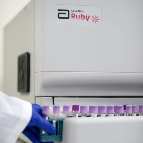 CELL-DYN Ruby Haematology Analyser
